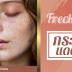 Freckler